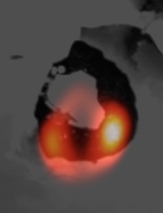 The LBT image of Loki Patera (orange) laid over a Voyager image of the volcanic depression.The emission (in orange colour) appears spread out in the north-south direction due to the telescope point-spread function; it is mainly localised to the southern corners of the lake. Image credit: LBTO- NASA.